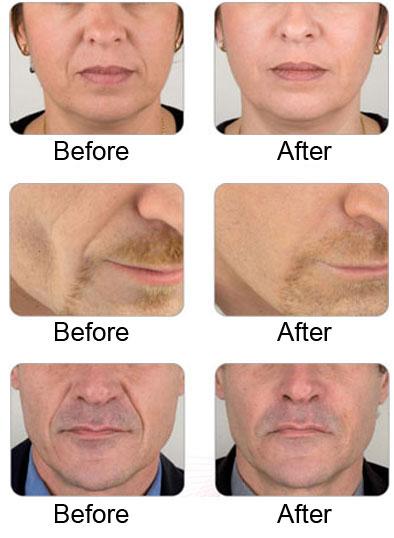 Dermal fillers cosmetic dentist Sheffield Millhouses Dental